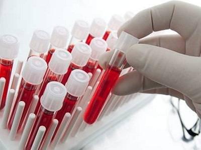 Награнице с государством Украина усилили контроль из-за вспышки гепатита А