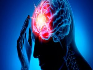 Skolkovo Resident Company Has Created a Device That Reduces Mortality During Stroke by 48%