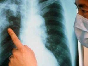 Новую форму туберкулёза обнаружили в ряде стран СНГ
