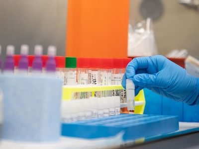 Russian Scientists Have Developed Three Drugs to Treat Coronavirus Infection