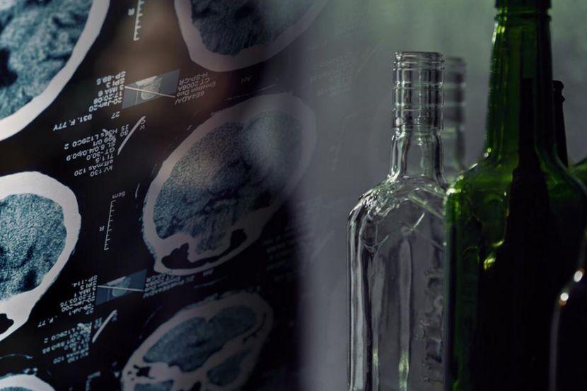 Нейробиологи рассказали как иммунные клетки мозга усиливают алкоголизм